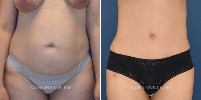 Lipo Tummy Tuck Before And After Patient 8A