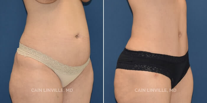 Lipo Tummy Tuck Before And After Patient 8B