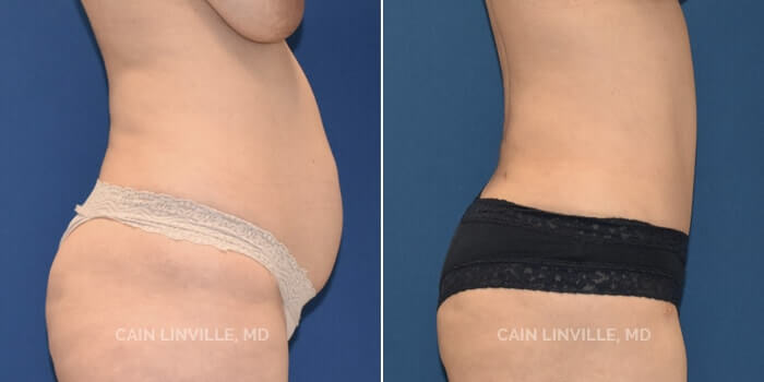 Lipo Tummy Tuck Before And After Patient 8C