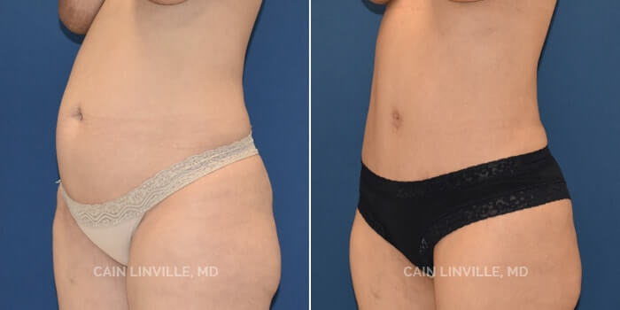 Lipo Tummy Tuck Before And After Patient 8D