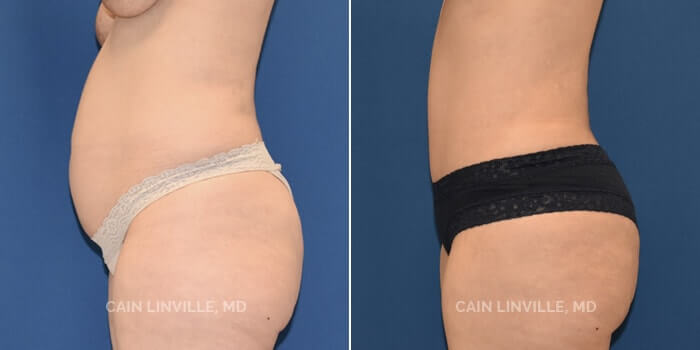 Lipo Tummy Tuck Before And After Patient 8E