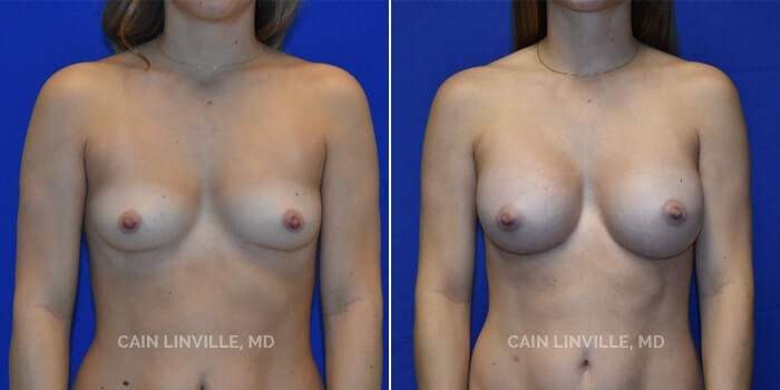 Breast Augmentation Before And After Patient 25A