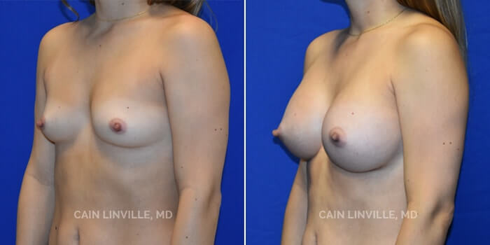 Breast Augmentation Before And After Patient 25B