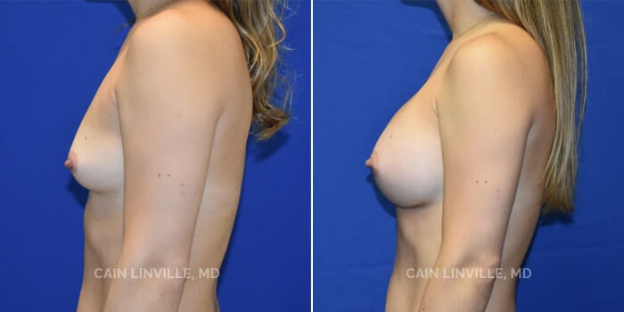 Breast Augmentation Before And After Patient 25C