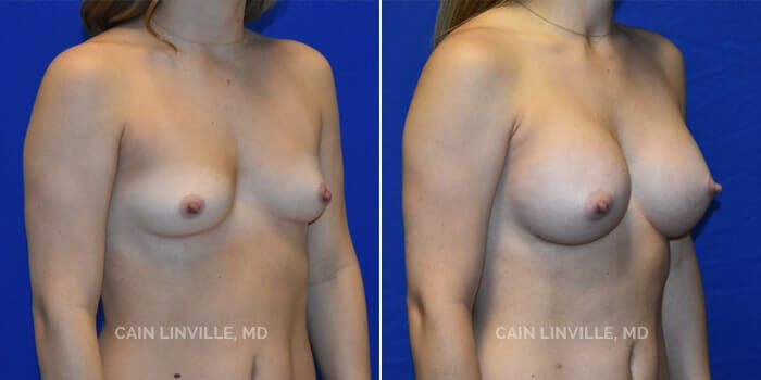 Breast Augmentation Before And After Patient 25D