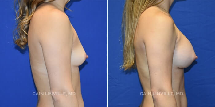 Breast Augmentation Before And After Patient 25E