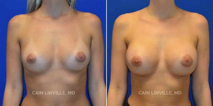 Breast Augmentation Before And After Patient 1A