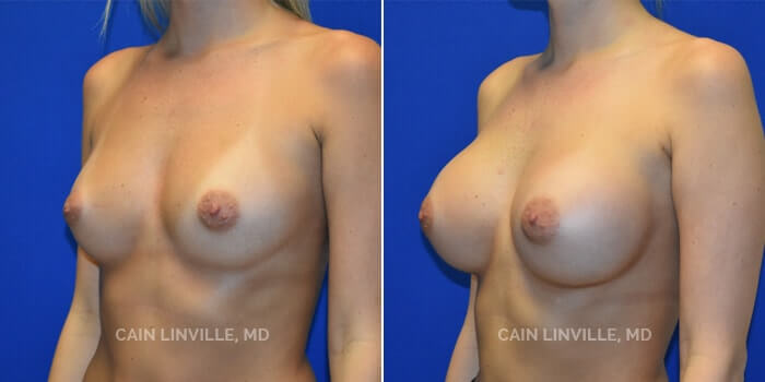 Breast Augmentation Before And After Patient 1B