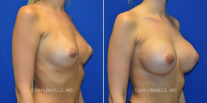 Breast Augmentation Before And After Patient 1D