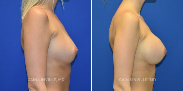 Breast Augmentation Before And After Patient 1E