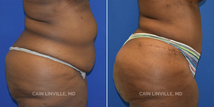 Lipo Tummy Tuck Before And After Patient 9E