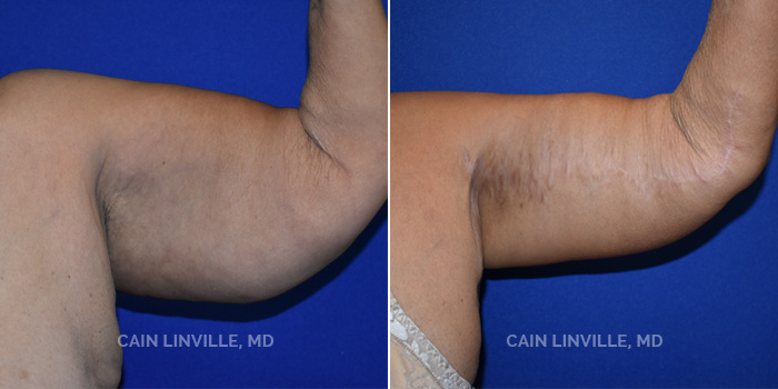 Brachioplasty (Arm Lift) Before And After Patient 1B