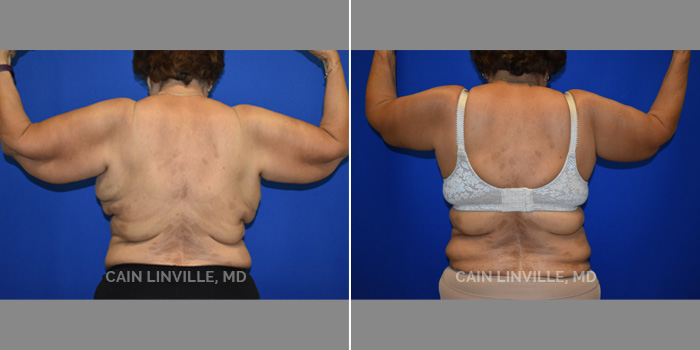 Brachioplasty (Arm Lift) Before And After Patient 1C
