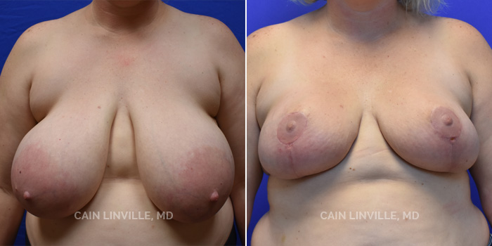 breast reduction Patient 2021 before and after 1a Houston Texas