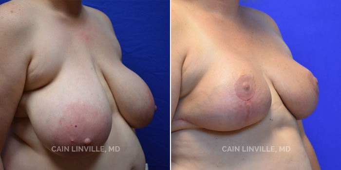 Breast Reduction Before And After Patient 6B