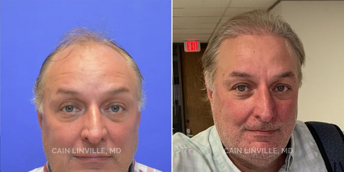 Neograft Hair Restoration Before And After Patient 1A
