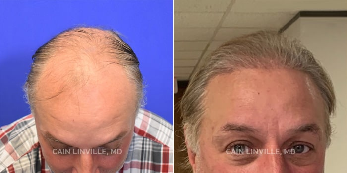 Neograft Hair Restoration Before And After Patient 1B