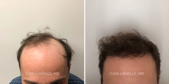 Neograft Hair Restoration Before And After Patient 2A