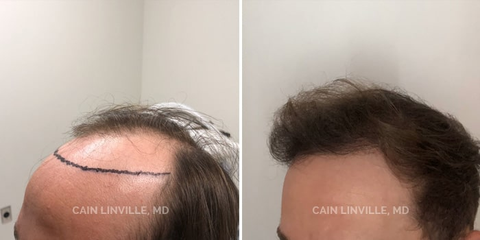 Neograft Hair Restoration Before And After Patient 2B