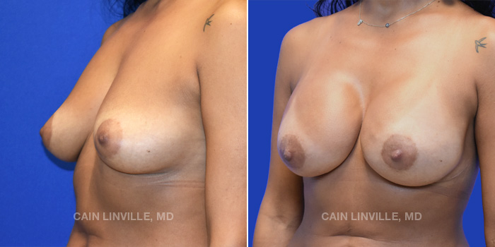 Breast Reconstruction Before And After Patient 12B