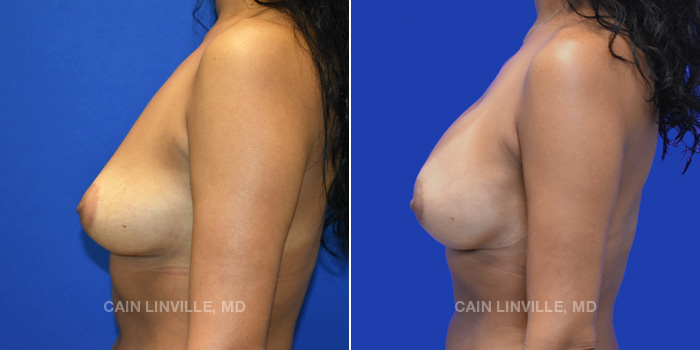 Breast Reconstruction Before And After Patient 12C