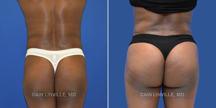 Brazilian Butt Lift Before And After Patient 1A