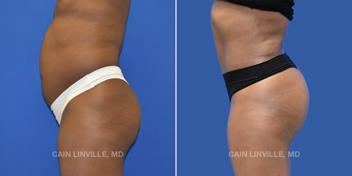 Brazilian Butt Lift Before And After Patient 1B