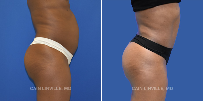 Brazilian Butt Lift Before And After Patient 1C