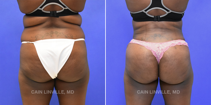 Brazilian Butt Lift Before And After Patient 3A