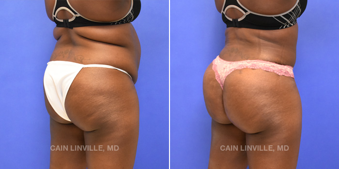 Brazilian Butt Lift Before And After Patient 3D