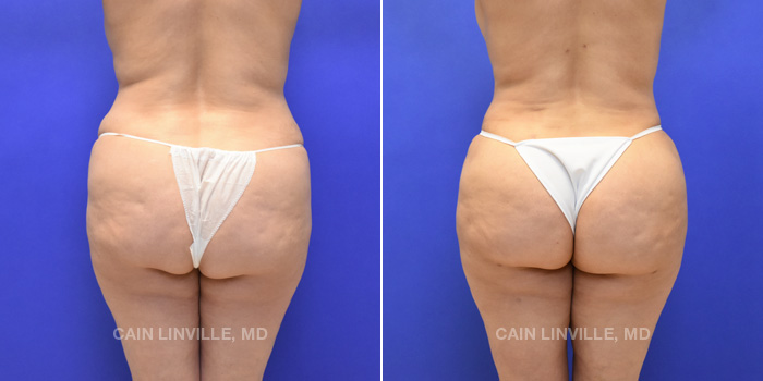 Brazilian Butt Lift Before And After Patient 6A