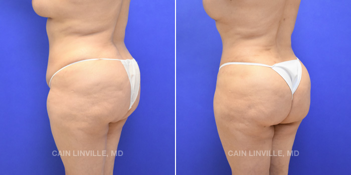 Brazilian Butt Lift Before And After Patient 6B