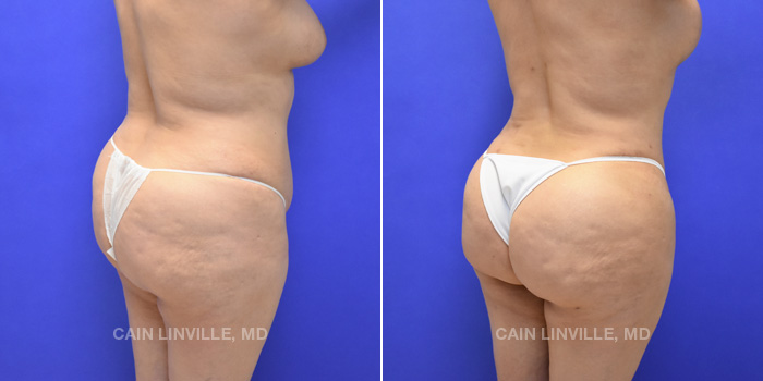 Brazilian Butt Lift Before And After Patient 6C