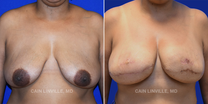 Breast Reconstruction Before And After Patient 10A
