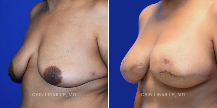 Breast Reconstruction Before And After Patient 10B