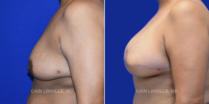 Breast Reconstruction Before And After Patient 10C