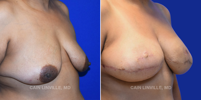 Breast Reconstruction Before And After Patient 10D