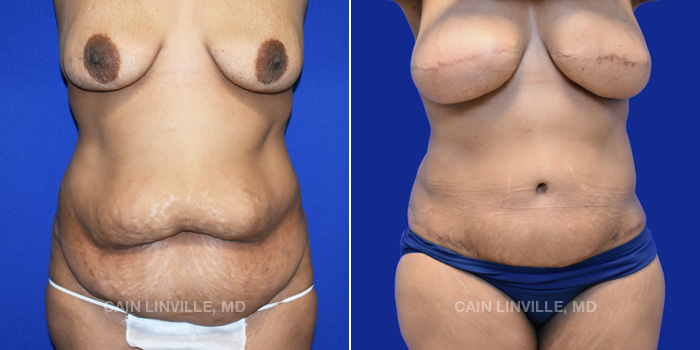 Breast Reconstruction Before And After Patient 10E
