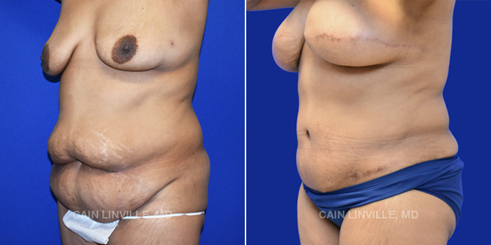 Breast Reconstruction Before And After Patient 10F