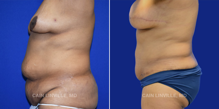 Breast Reconstruction Before And After Patient 10
