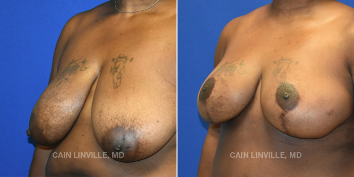 Breast Reconstruction Before And After Patient 11B