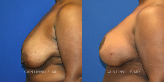 Breast Reconstruction Before And After Patient 11C