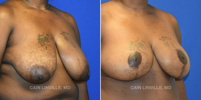 Breast Reconstruction Before And After Patient 11D