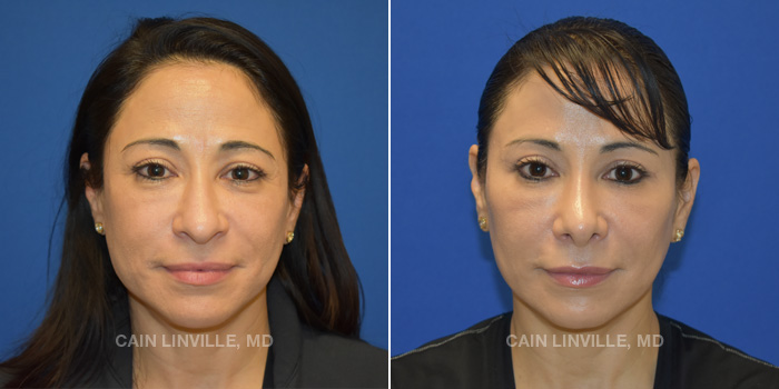 Rhinoplasty Before And After Patient 2A