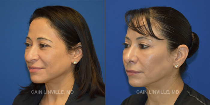 Rhinoplasty Before And After Patient 2B
