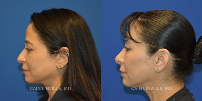 Rhinoplasty Before And After Patient 2C