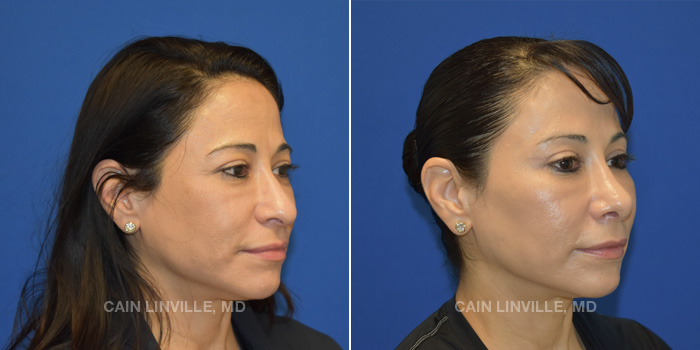 Rhinoplasty Before And After Patient 2D