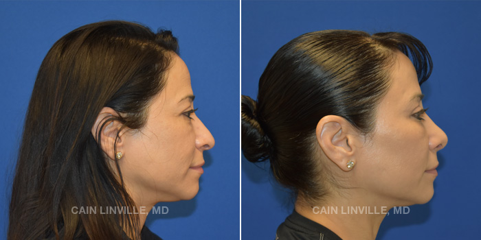 Rhinoplasty Before And After Patient 2E