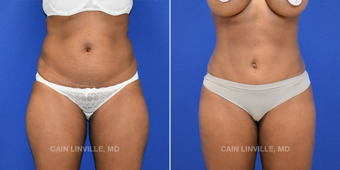 Bodytite Before And After Patient 1A