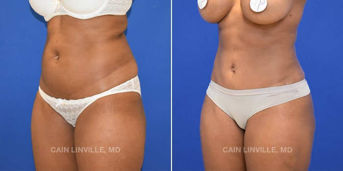 Bodytite Before And After Patient 1B